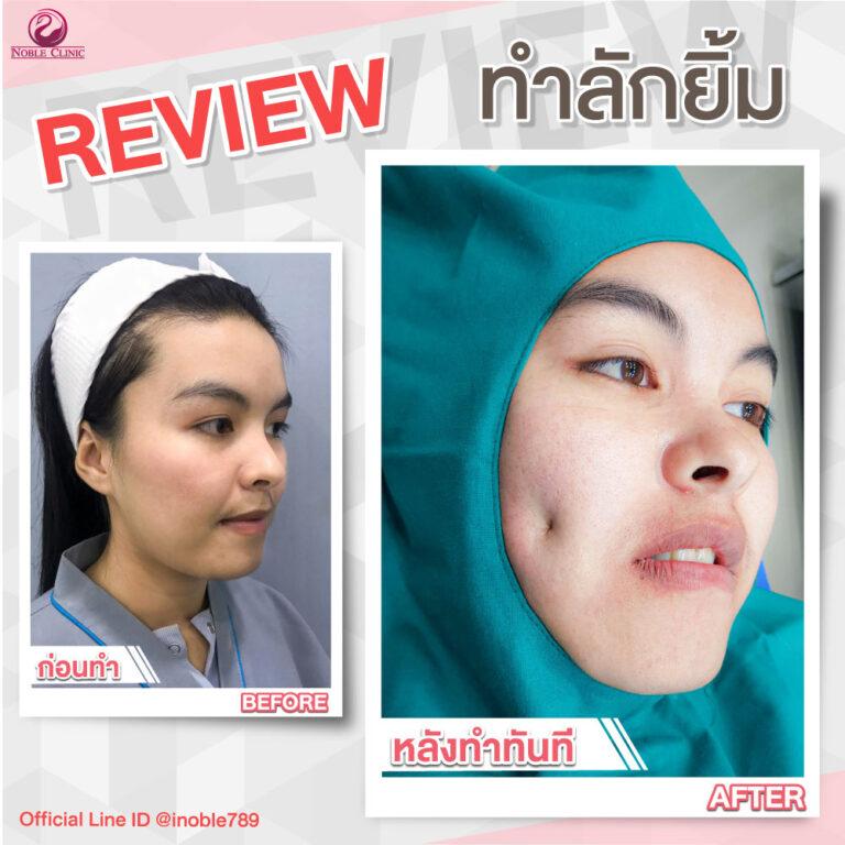iNoble---Review_ลักยิ้ม