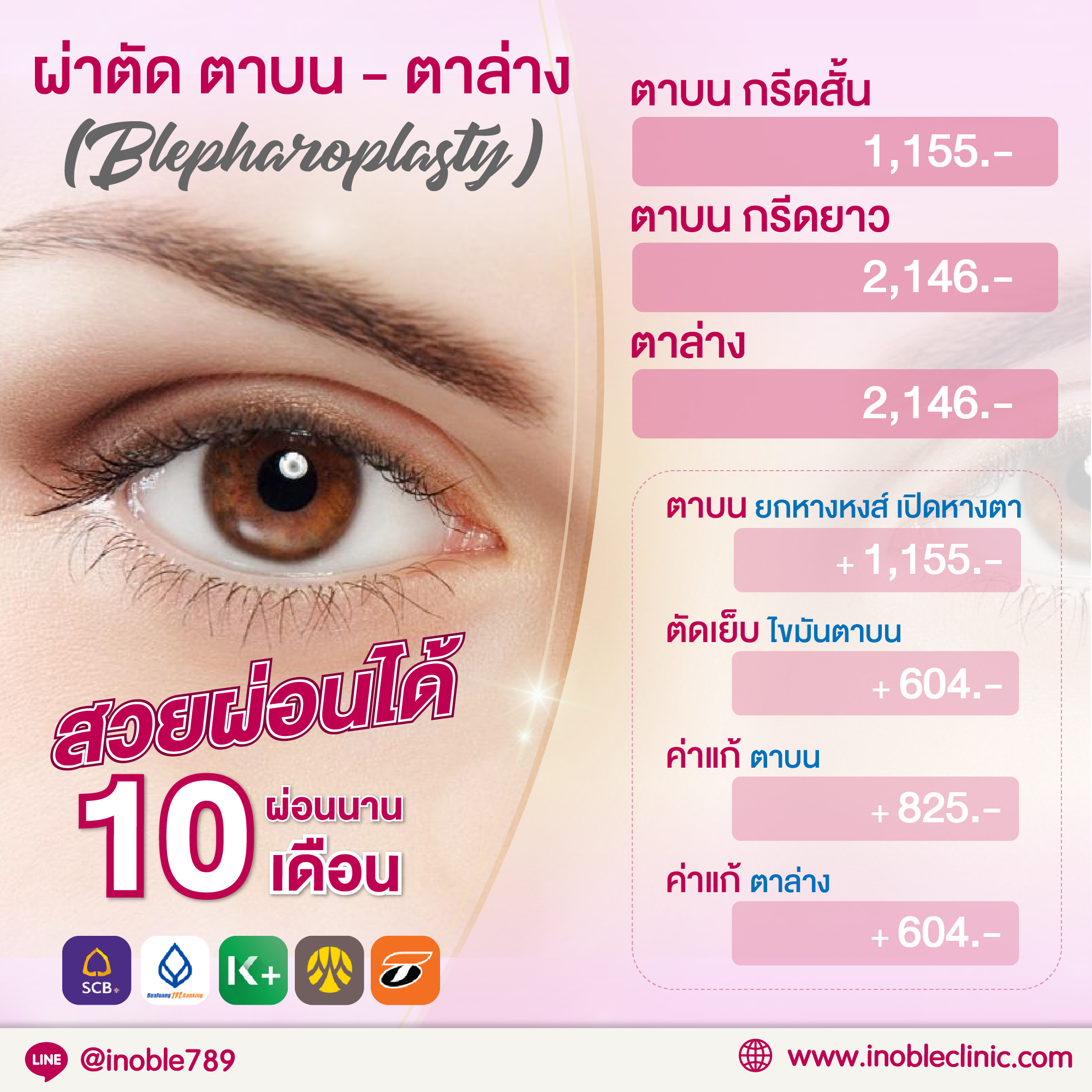 iNoble - ผ่าตัดตา